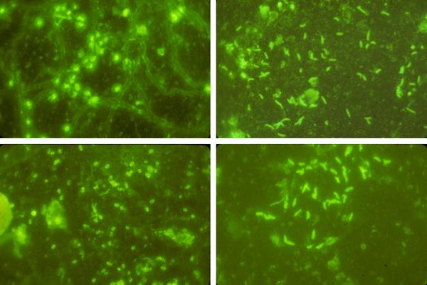 Examples of microscopic views of ocean biofilms after immunofluorescent staining. Top left: Comamonas terrigena; Top right: Vibrio alginolyticus; Bottom left: Achromobacter; Bottom right: Pseudomonas putrefaciens. (Credit: University at Buffalo)